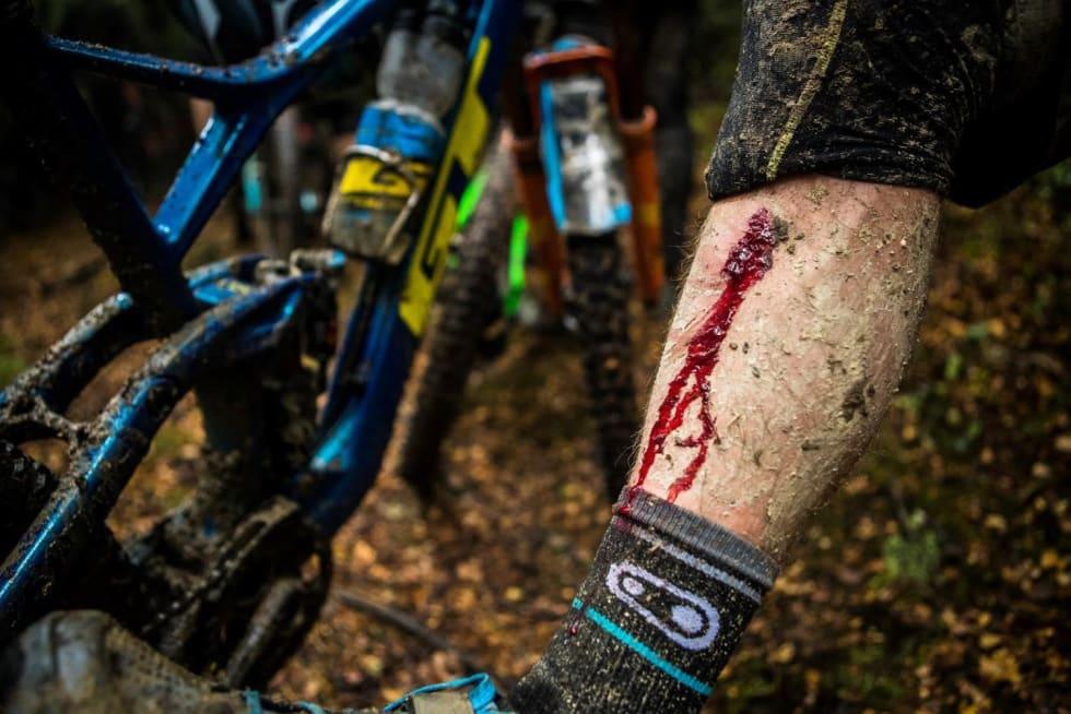 Dette kuttet som Martin Maes fikk under New Zealand Enduro i mars ble så betent at legene foreskrev en type antibiotika som står på UCIs liste over forbudte stoffer. Foto: GT Factory Racing