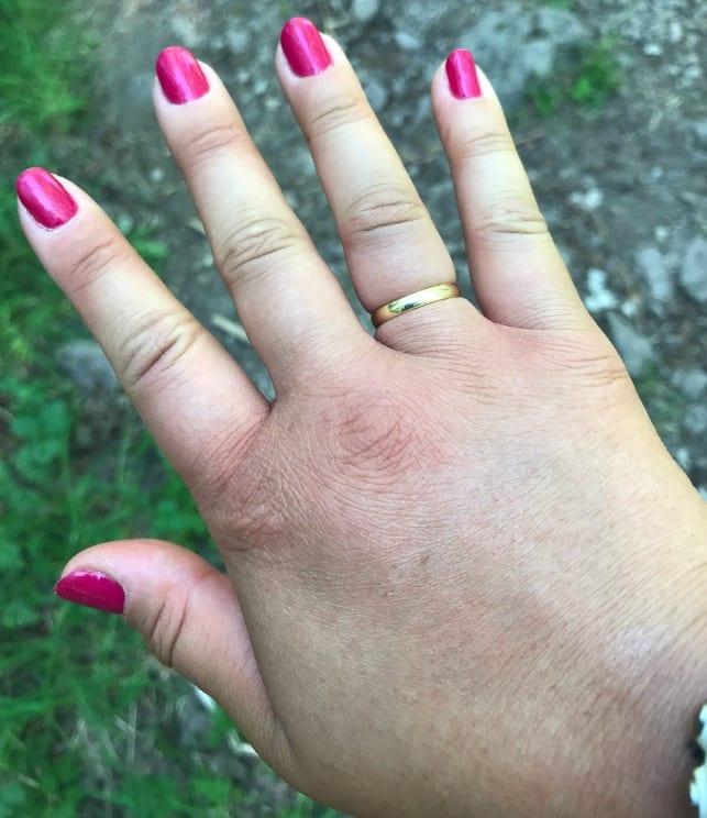 GLEMTE Å TA AV RINGEN: – Jeg prøvde å sitte stille, ha hånda høyt for å få ned blodet og trøkket i armen og jeg fikk av ringen til slutt, forteller Anna. Foto: Privat