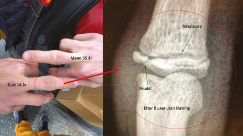 Fingerskader-beskyttelse-4