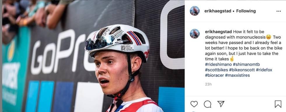 Erik Hægstad fikk kyssesyken